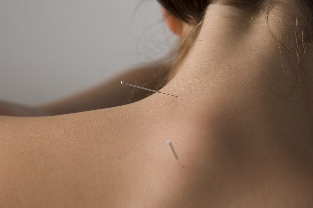 acupuncture in Marbella Costa del Sol
