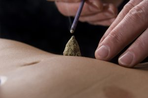 moxibustion in Marbella