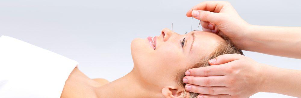 facila rejuvenation acupuncture