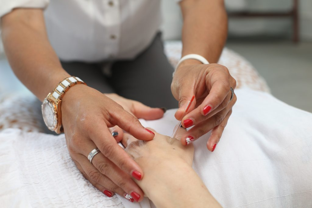 acupuncture curbs hot flushes